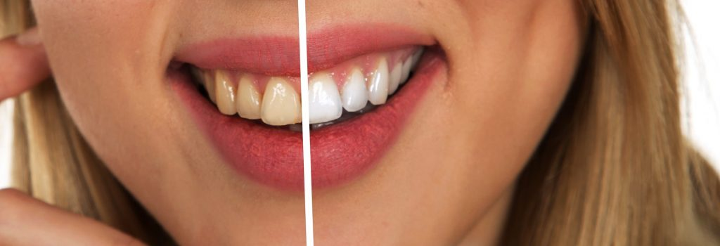 teeth whitening oshawan
